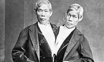 chang-and-eng-siamese-twins.jpg
